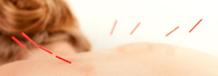 Chiropractic Calgary AB Acupuncture